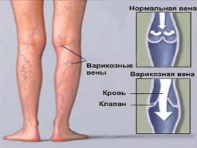 Варикоз вен нижних конечностей - это очень опасная болезнь